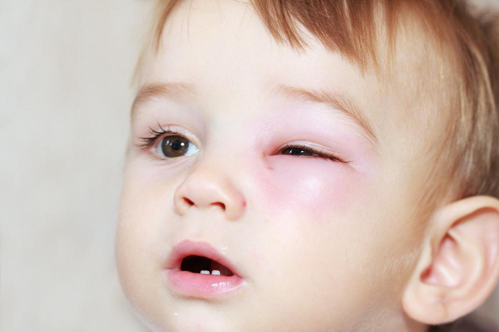 tratamiento de la conjuntivitis en el recien nacido
